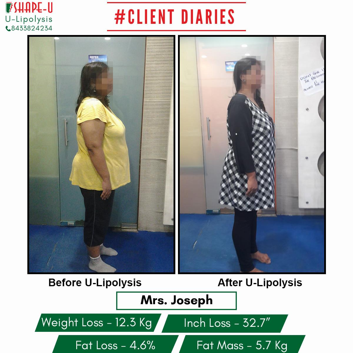 obesity clinic in mumbai weight loss clinic slimming centers in mumbai weight loss program in mumbai tighten loose stomach skin tighten loose stomach skin skin tightening treatment face tightening neck tightening